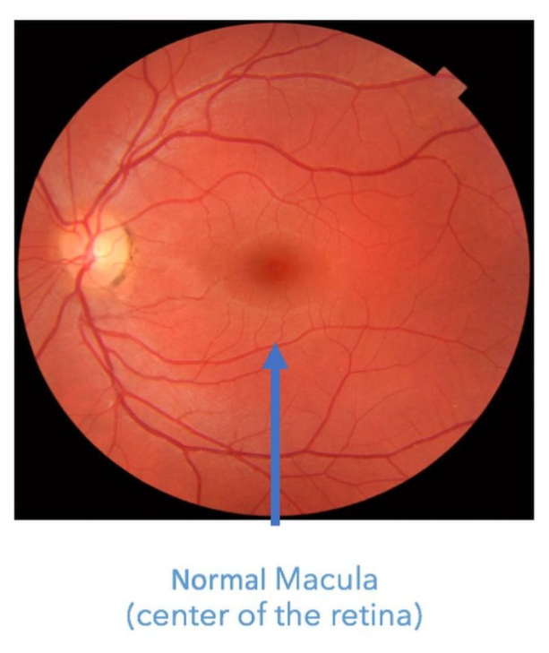 normal retina with flat macula in the center, no drusen or blood to suggest leaky eye syndrome