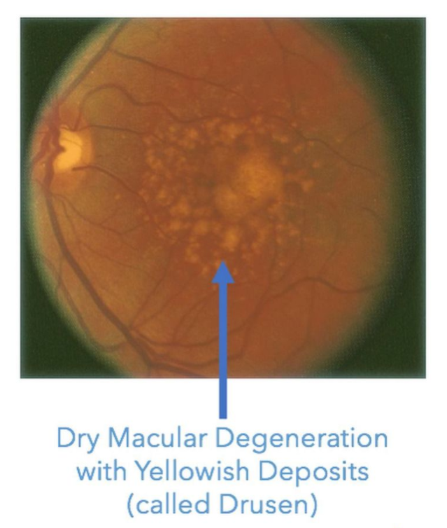 dry macular degeneration with drusen deposits under the retina that look like yellowish-white pebbles. No leakage of blood or fluid to suggest leaky eye syndrome