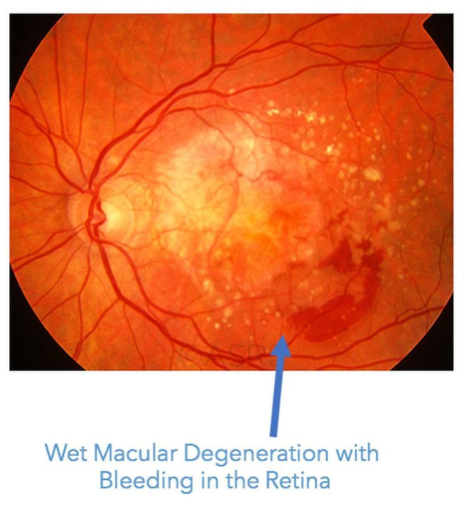 wet AMD with bleeding in retina, leaky eye syndrome